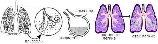 Отек легких: причины, механизмы развития, диангостика