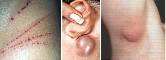 аллергия на кошачьи царапины фото